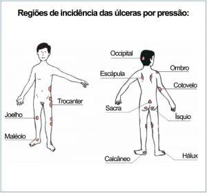 regiores-de-incidencia